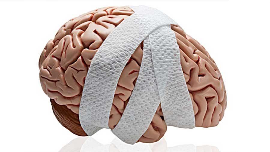 Los Mejores Abogados en Español de Lesiones Cerebrales Para Mayor Compensación en Culver City California